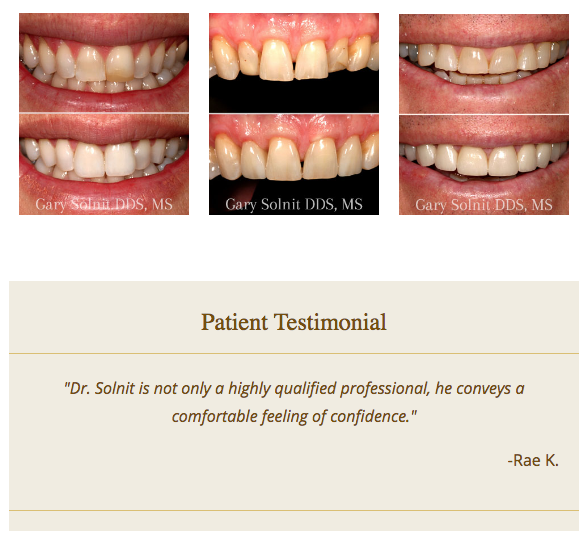 Dental websites with before and after gallery